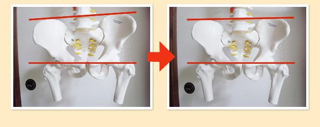 骨盤変化模型イメージ